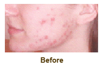 before treatment of levulan